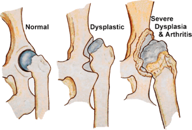 HIP & ELBOW DYSPLASIA